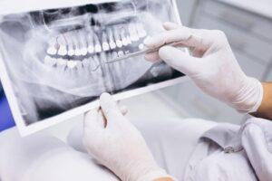 Mancanza denti. Conseguenze per la salute